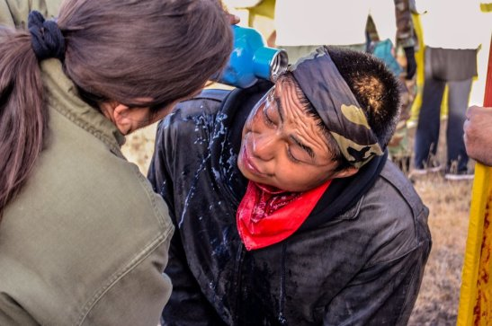 22 Oct 2016.A Water Protector being rinsed off after Police OC sprayed him without provocation 3 miles west of Highway 1806. Photo by Rob Wilson Photography